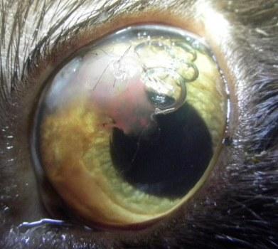 blauw rond de ogen